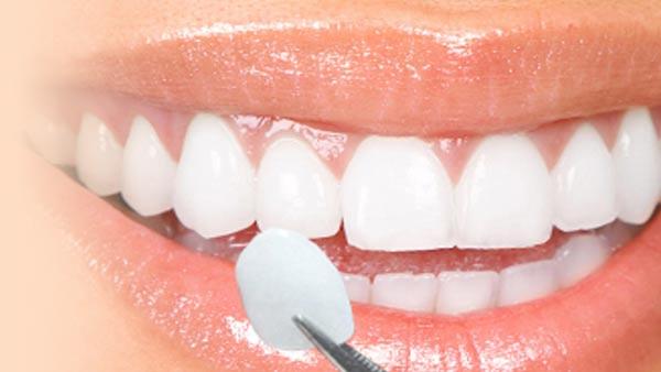 Cosmetic Dental in Chandigarh