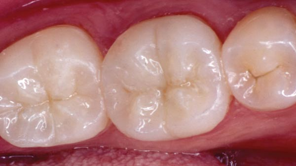 White Fillings Treatment - Chandigarh